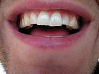 Tanden met stukjes eraf door knarsen (foto bagaball)